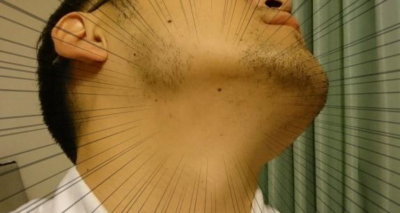 湘南美容クリニックのヒゲ脱毛、ようやく効果が出てきたよ!